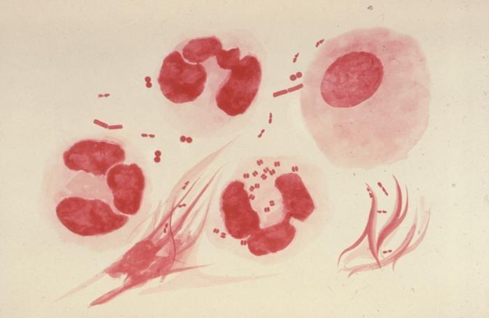 gonorrhea.jpg