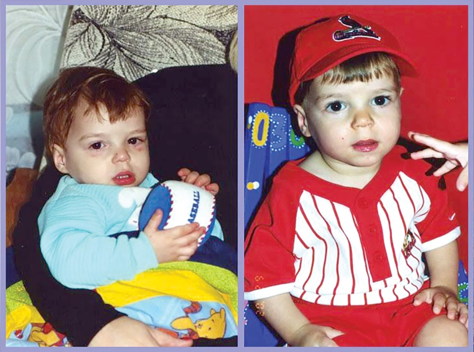 Laurie photographed Austin immediately after his adoption (left) and again ten days later. - COURTESY LAURIE CALZADA