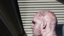 Rugby Burn: Gravely injured in a fluke house fire, Iraq War vet Stephen Ellis is dead set on returning to the sport he loves