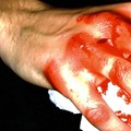 Bus Driver Sees Blood, Passes Out: Mayhem!