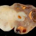 Wash. U. Docs Find Underlying Cause of Ovarian Cancer