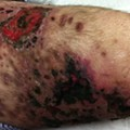 Krokodil, the Cheap Heroin That Will Rot Your Skin and Fingers Off, Seen in St. Louis