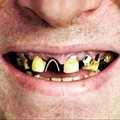 St. Louis: Worst Teeth in the Nation According to Magazine