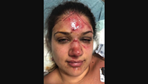 Texas Woman Says She Was Attacked While Tubing in New Braunfels