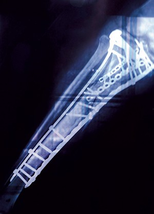 Benedetto's leg X-ray after 17 surgeries - COURTESY IMAGE