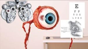Seriously: Eye Screening