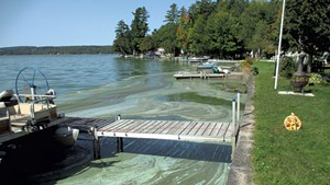 Blue-green algae in front of Dick and Cheryl Benton's home on Lake Carmi earlier this year