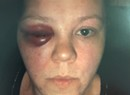 'You Guys Are Brutes!' St. Albans Cop Punches Handcuffed Woman