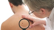 WTF: Why does Vermont have such a high incidence of melanoma?