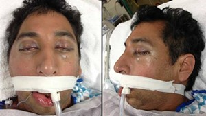 This man was found unconscious in Union Square. Do you know him? - SAN FRANCISCO GENERAL HOSPITAL