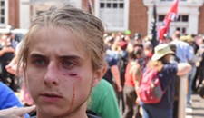 Violence Erupts as Anti-Racism Protesters and White Nationalists Clash in Charlottesville