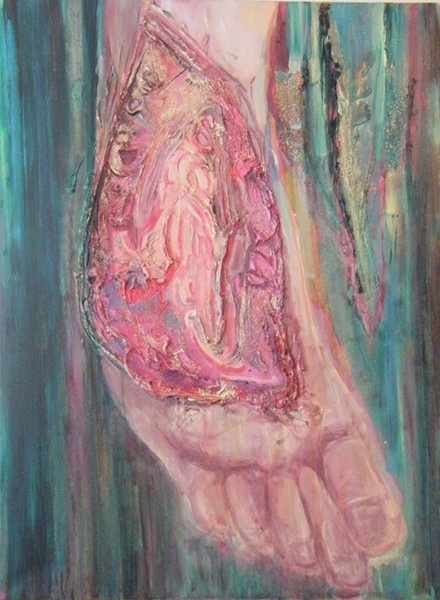 Maria Bartlett's disease in detail in Cutesy Pukesy