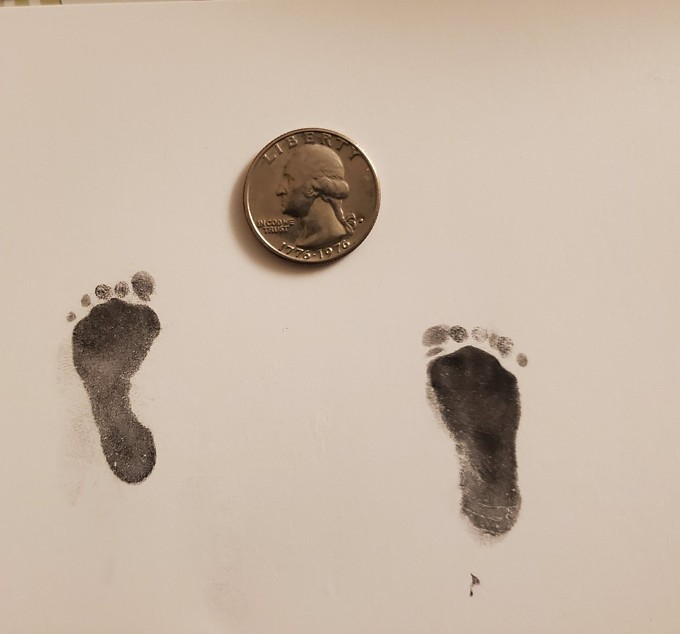 One-pound baby Henry's footprints are nearly the size of a quarter. After his mother had an emergency C-section, the baby was born at 25 weeks. - TUCSON MEDICAL CENTER