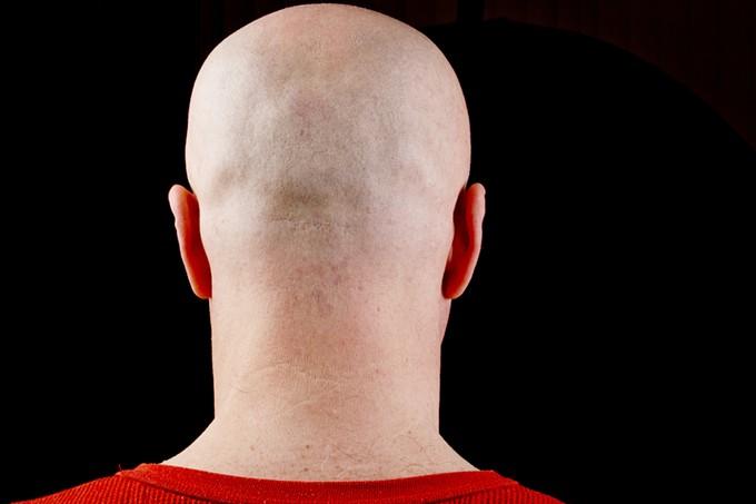 bigstock-bald-head-middle-aged-man-97775831.jpg